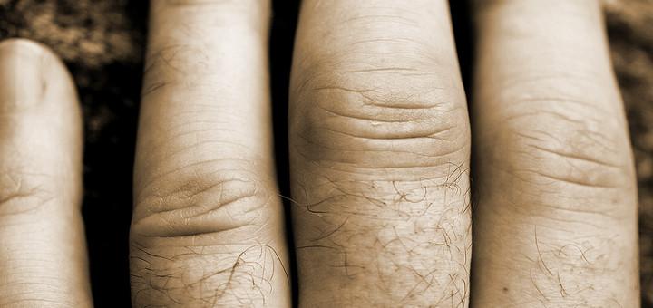 cannabis-arthritis-pain