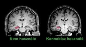 cannabis-brain - HUN
