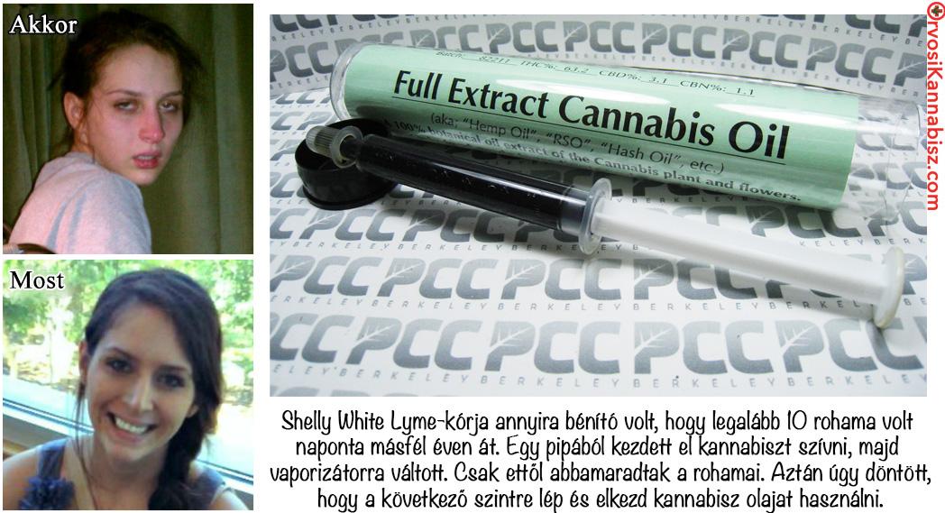 Shelly White-Lyme02 - HUN