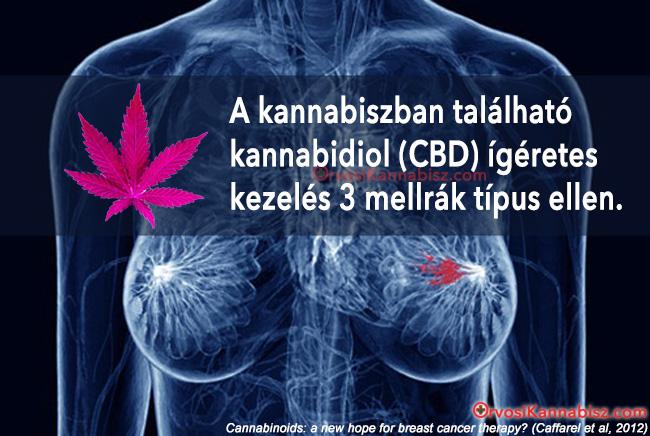 Breast cancer - HUN2