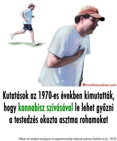 Asthma - HUN